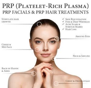 PRP Trigenics Anti Aging platelet rich plasma treatment